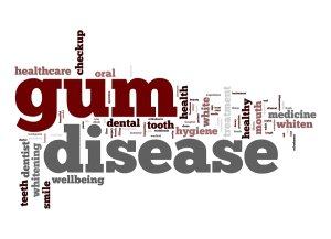 gum disease in damascus